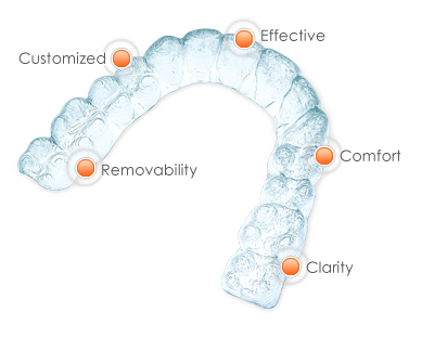 Diagram of Invisalign benefits